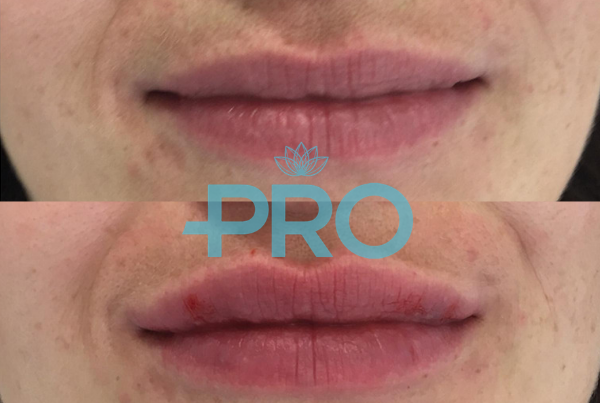 Lip Fillers | Nottingham & Derby | Pro Aesthetics | Skin Clinic