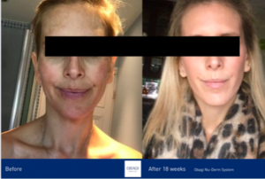Obagi-Skincare-before-and-after