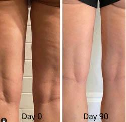 skinade-targeted-solutions-cellulite