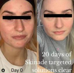 before-and-after-skinade
