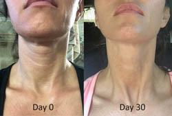 skinade-before-and-after